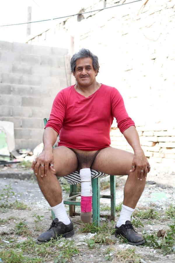 verdens mindste voksne penis
